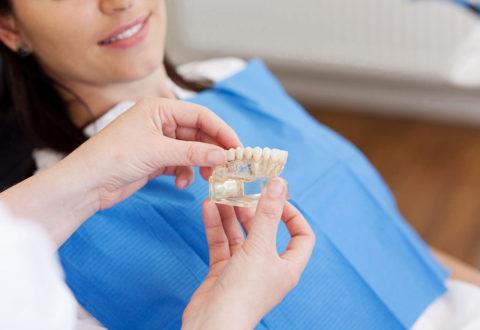 Dental implants istanbul
