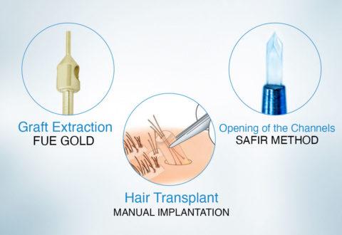 Hair transplant fue gold method